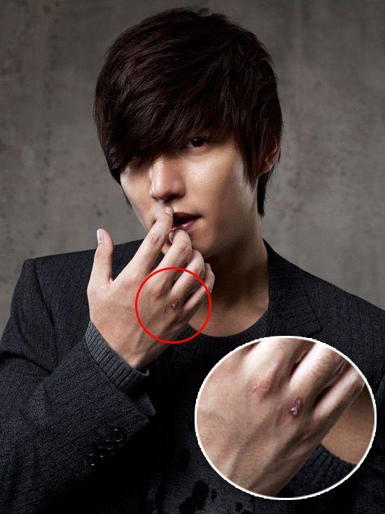 Lee Min-ho hurt on set?